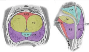 Prostate cross-section